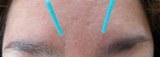 美容鍼:ほうれい線